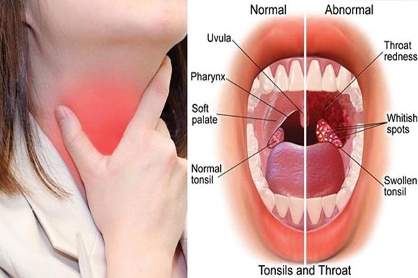 गले में टॉन्सिल के लक्षण पहचान कर