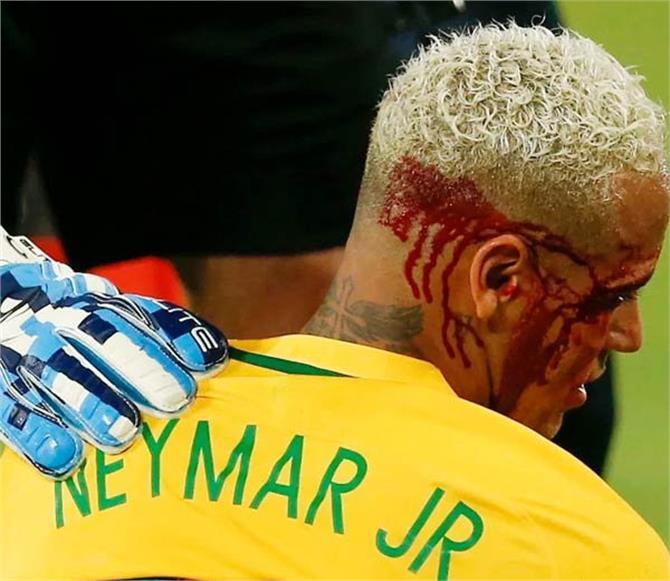 फुटबॉलर नेमार को मैदान में लगी खतरनाक चोट, निकला खून