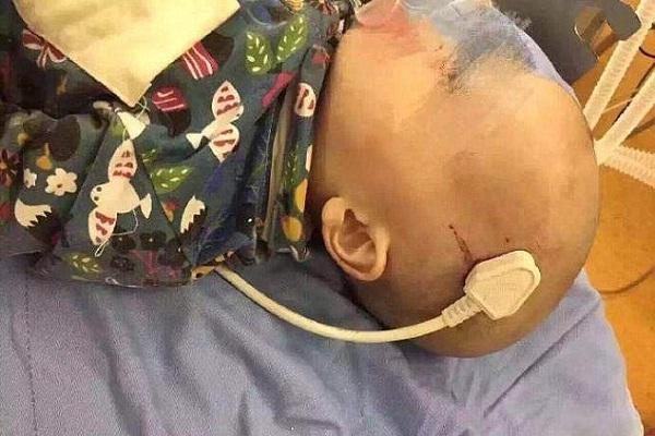 खेल-खेल में हुअा हादसा, 2 साल के Chen के सिर में घुसा प्लग(Pics)