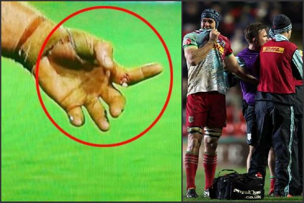 मैदान के बीच हुआ दर्दनाक हादसा जिसे देख कांप जाएंगे आप