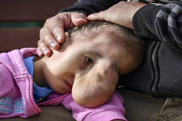 सर्जरी से बदली इस 'मॉन्स्टर' बच्चे की लाइफ(Pics)
