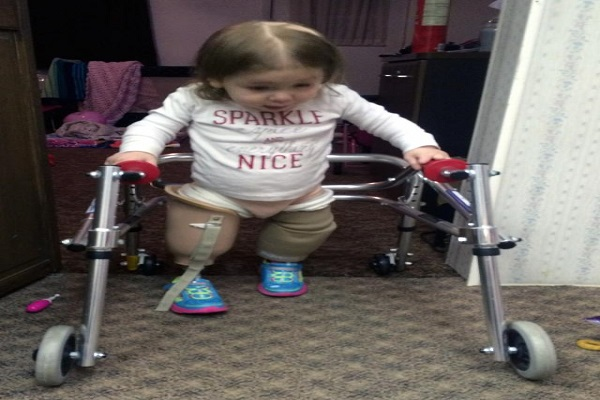 2 साल की ये बच्ची है असली फाइटर,  बनी मिसाल