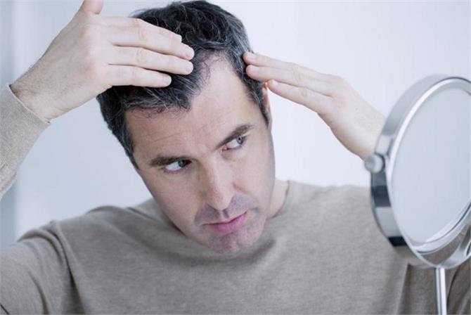 Image result for इन आदतों की वजह से सफेद होते हैं आपके बाल