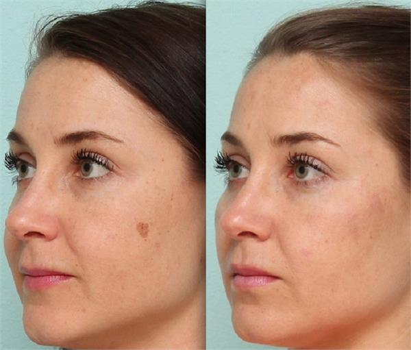 चेहरे के Dark Sports को हटाने के लिए ऐसे करें नींबू का इस्तेमाल