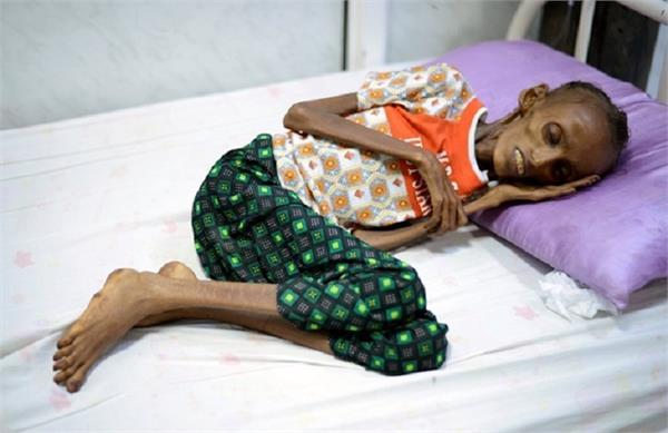 कुपोषण ने बना दिया 18 साल की लड़की को 80 बरस की बुढ़िया