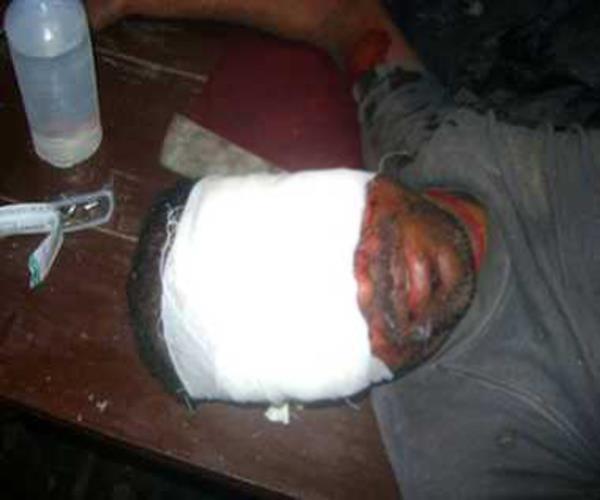 हैवानियत की हदें पार, पिटाई करने के बाद दबंगों ने फोड़ी युवक की दोनों आंखे