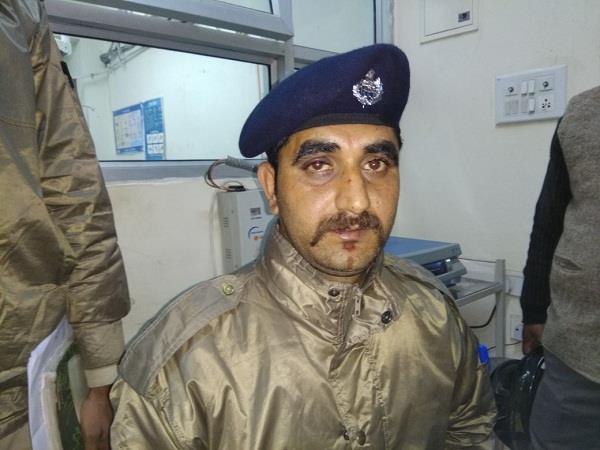कैदी ने जेलकर्मी पर किया जानलेवा हमला, अस्पताल में भर्ती