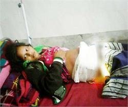 अॉपरेशन के दौरान डॉक्टर ने महिला के पेट में छोड़ी कैंची, एेसे हुआ खुलासा
