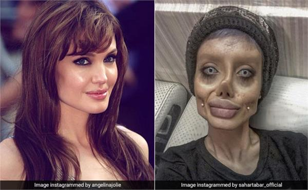 iranian girl went through 50 surgeries in a bid to look like angelina jolie