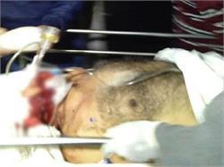 इलाहाबाद में सर्जन ए.के. बंसल की हत्या, शहर में तनाव