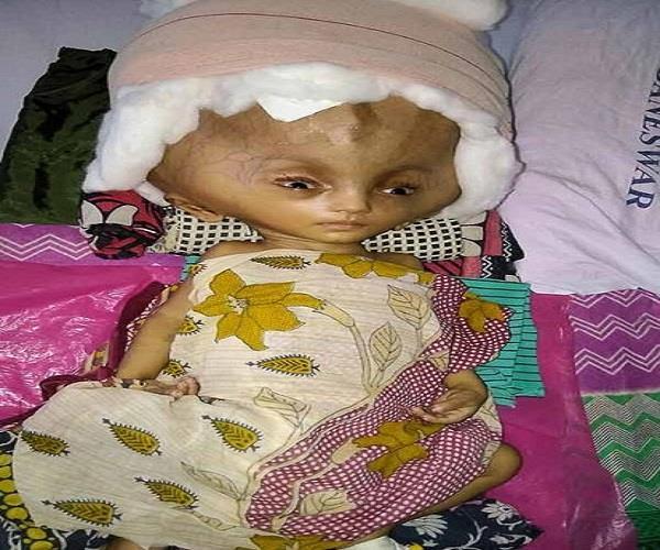 इस बच्चे को लोग कहते हैं भूत, बीमारी की वजह से हुआ यह हाल!