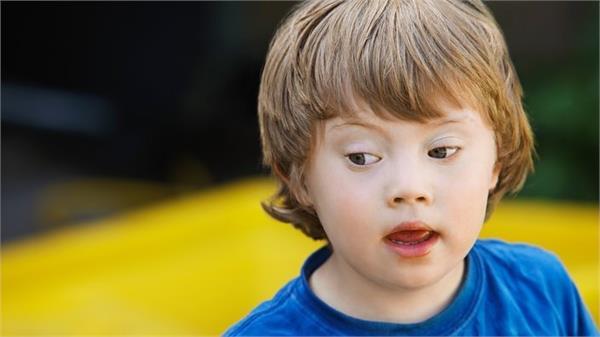 वर्ल्ड डाउन सिंड्रोम डे : 21 मार्च को बच्चों को किया जाएगा सम्मानित
