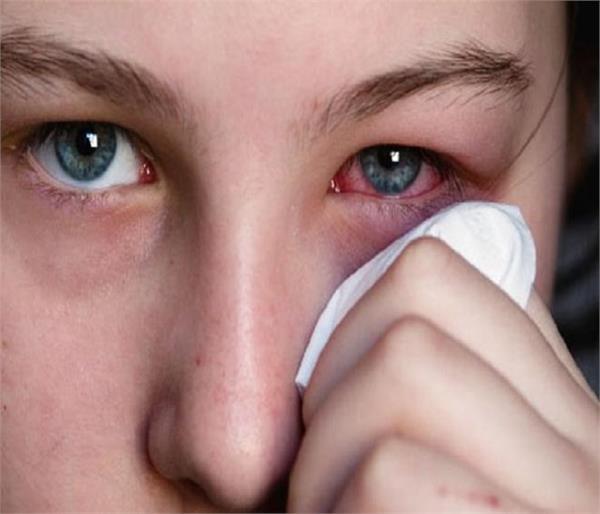 Eye Flu होने पर तुरंत करें ये घरेलू उपाय