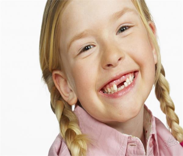 बरतेंगे ये सावधानियां तो नहीं होंगे बच्चों के दांत टेढ़े-मेढ़े