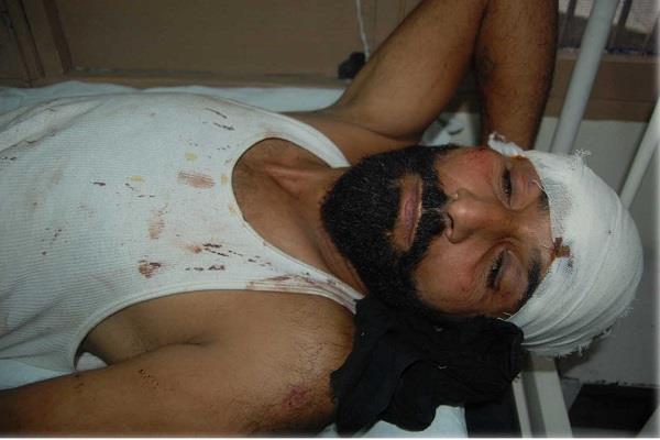 माडर्न जेल में हुई मारपीट, कैदी-हवालाती घायल