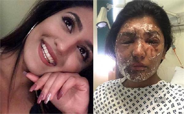 Acid attack रेशम ने अस्पताल में ही शुरू किया एक अभियान
