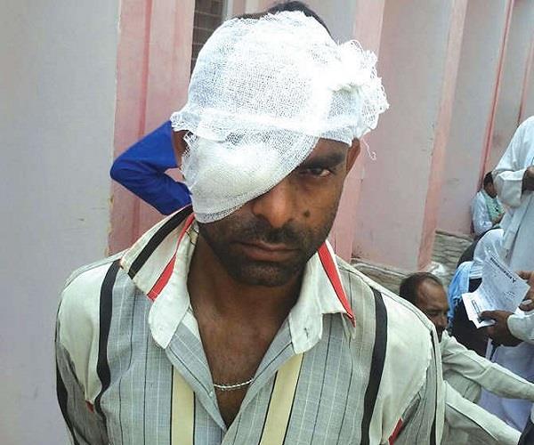 सामने आया पुलिस का क्रूर चेहरा, जुआ खेलने के शक में युवक को बेरहमी से पीटा, फूटी आंख