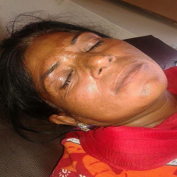 मामूली तकरार को लेकर महिला के सिर पर मारी ईंट, गंभीर घायल