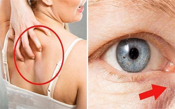 शरीर में शुगर लेवल बढ़ने पर मिलते हैं ये 7 संकेत