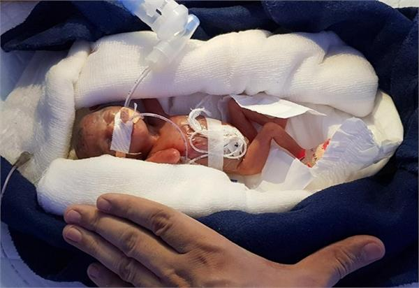 डॉक्टरों ने कर दिखाया चमत्कार, 400 ग्राम की बच्ची को मिली जिंदगी