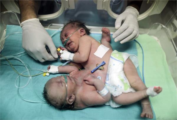 शरीर से जुड़ी  बच्चियों की सऊदी अरब में सफल सर्जरी