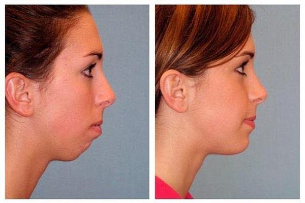 सिर्फ 5 फेशियल एक्सरसाइज करके चेहरे को दिखाएं स्लिम