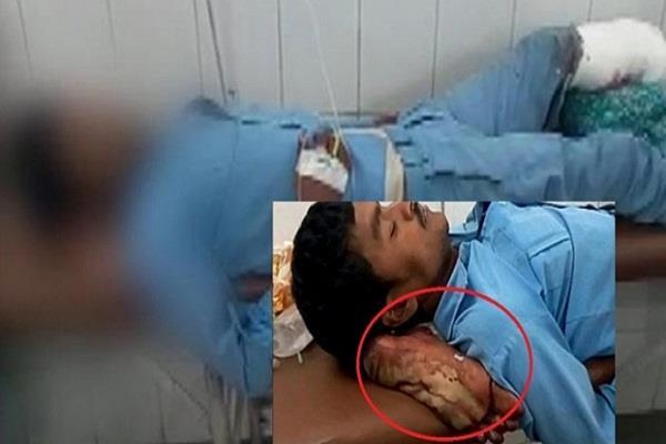 अस्पताल में कटे हुए पैर को तकिया बनाने पर नोटिस