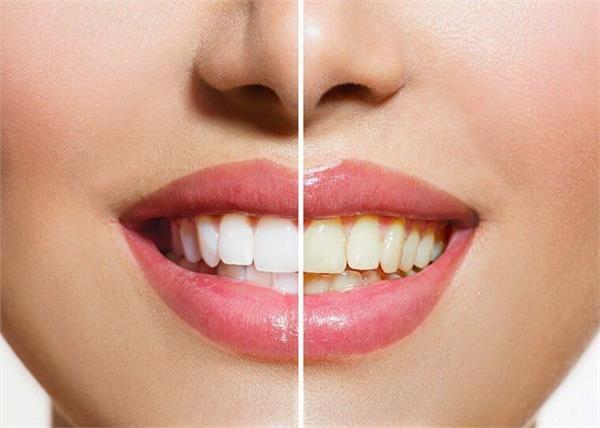 दांतों के पीलेपन से हैं परेशान तो आपके बड़े काम आएगी ये घरेलू चीजें