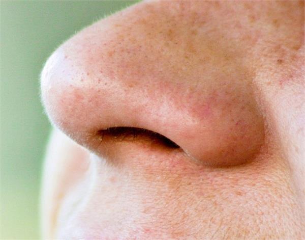 नाक में आए ये बदलाव करते हैं किडनी डैमेज की ओर इशारा
