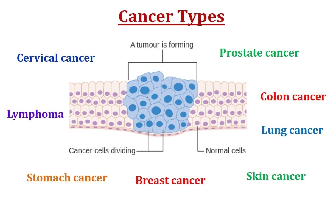PunjabKesari, Cancer Types Image, World Cancer SDay Image, विश्व कैंसर दिवस इमेज