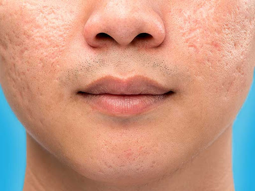 PunjabKesari, Nari, Open Pores, Beauty Tips Image