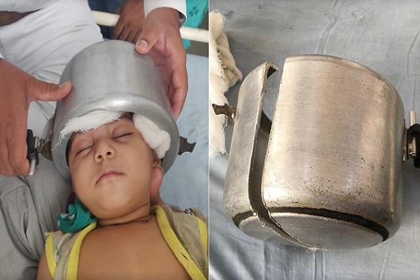कुकर में फंसा 1 साल की बच्ची का सिर ...