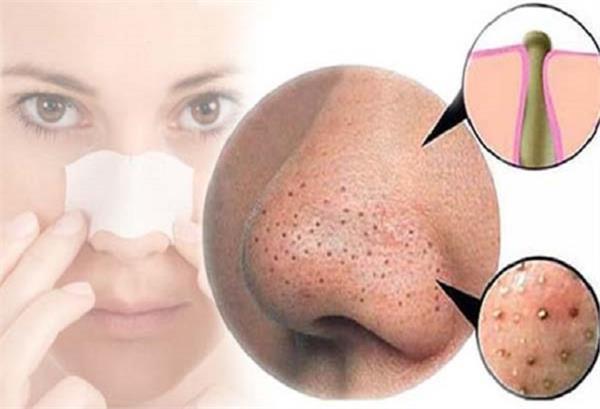 PunjabKesari, Pimples types Image, Pimples home remedy Image