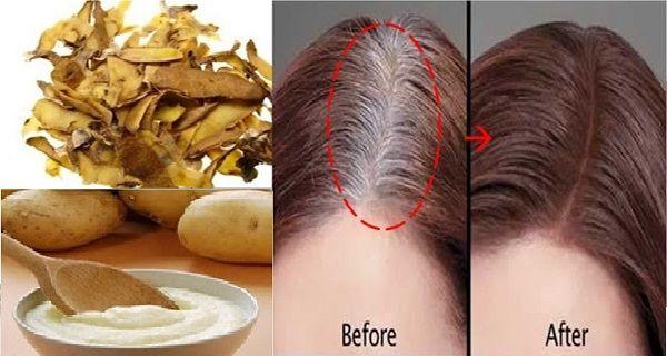 PunjabKesari, Potato Peel Hair Dye Image