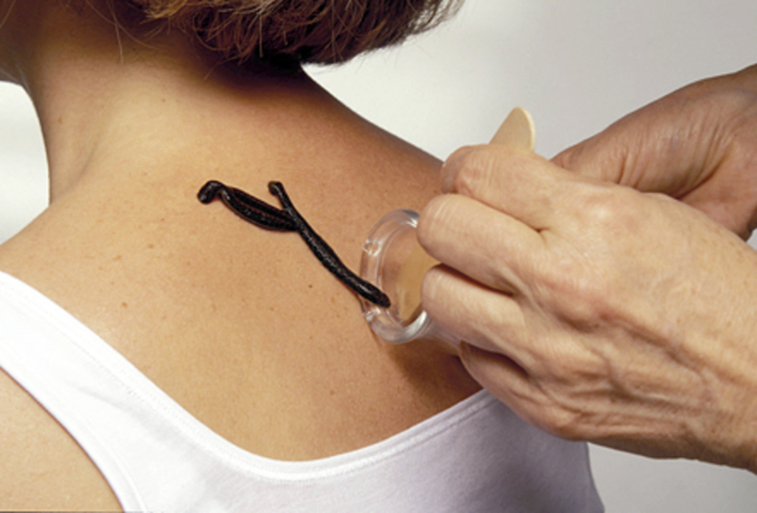 PunjabKesari, Leech Therapy Image, जोंक थेरेपी इमेज, जोंक थेरपी के फायदे इमेज