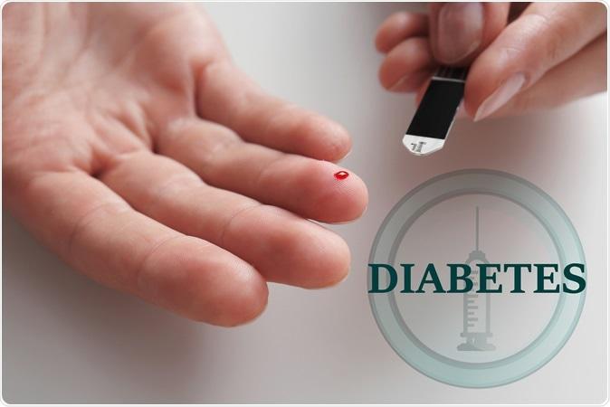 PunjabKesari, diabetes Image, Leech Therapy Image, जोंक थेरेपी इमेज, जोंक थेरेपी के फायदे इमेज