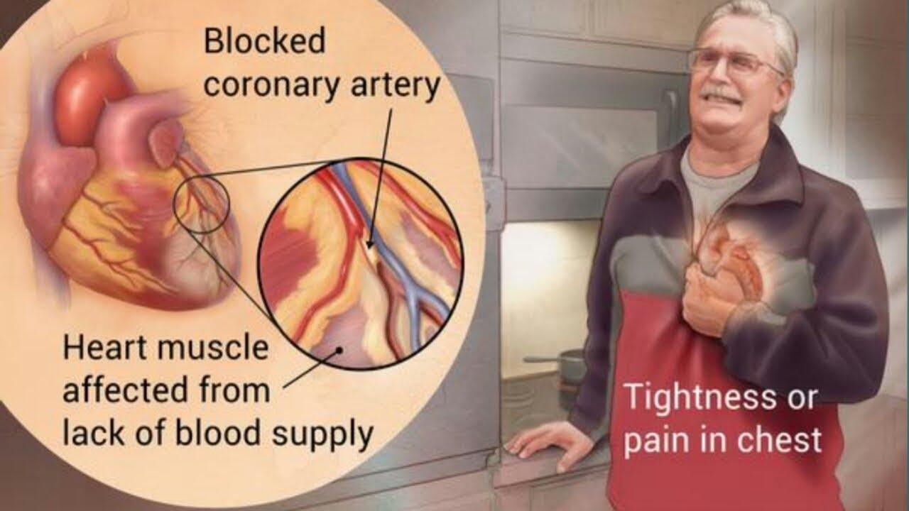 PunjabKesari, Heart attack Risk Image