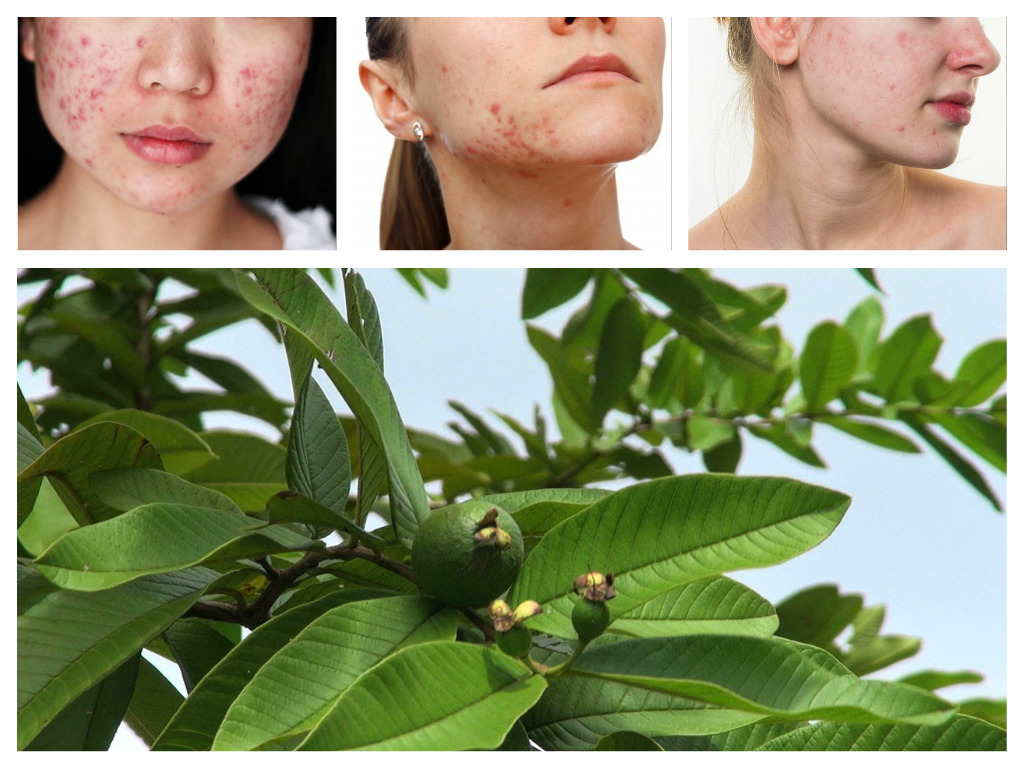 PunjabKesari, Guava Leaves Tea, Guava Leaves, Pimples, Nari.punjabkesari