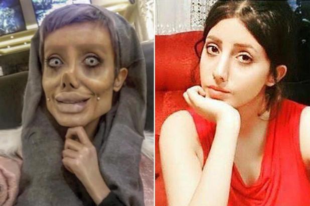 PunjabKesari,Nari,Angelina Jolie, Plastic surgery, Sahar Tabar