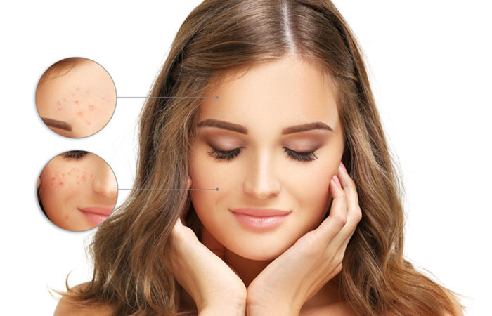 PunjabKesari, Nari, Gooseberry Beauty Benefits, Beauty Tips Image