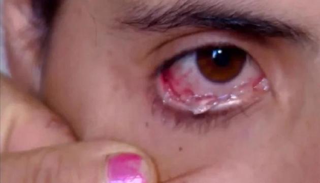 PunjabKesari,Nari, Eye disease