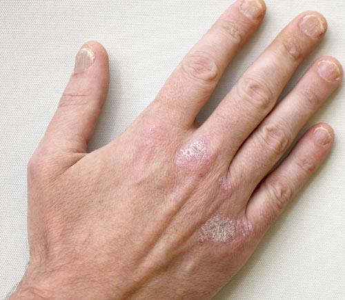 PunjabKesari, Skin Problem