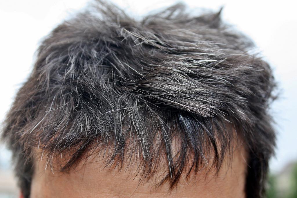 PunjabKesari, white hair