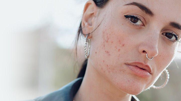 PunjabKesari, nari, acne problem