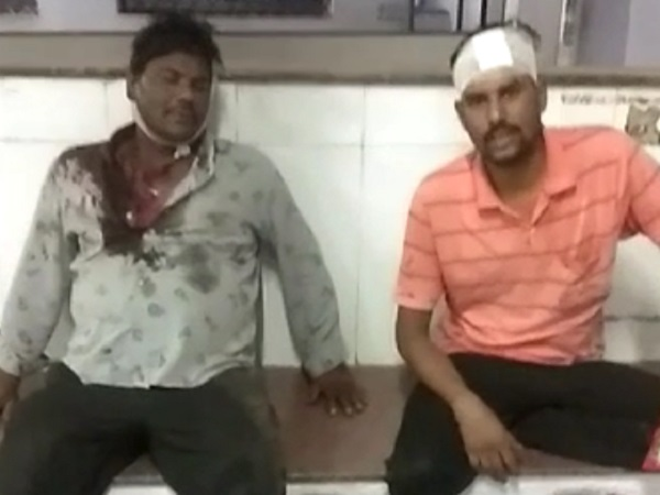 PunjabKesari, Madhya Pradesh, Dhar, Congress, Hooliganism, assault, corona, curfew, lockdown, beating, murderous assault, crime, Punjab Kesari