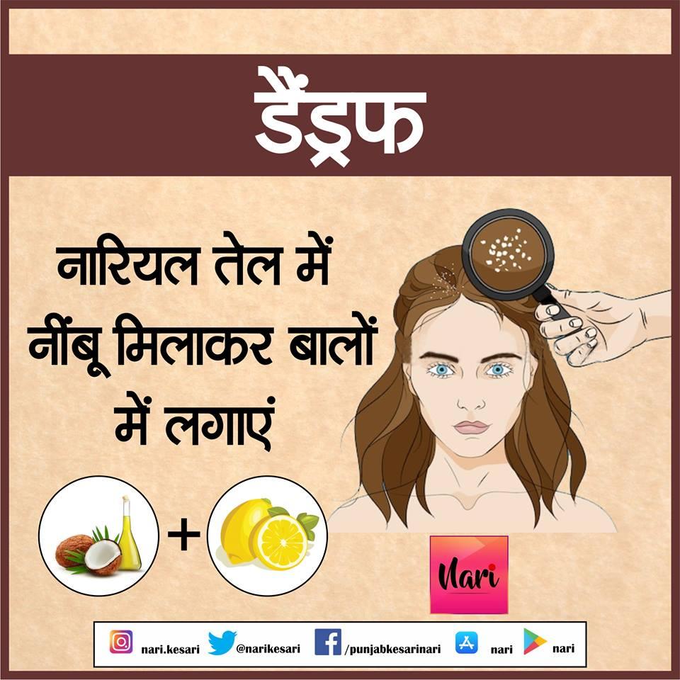 PunjabKesari, Dandruff Problem, HairCare