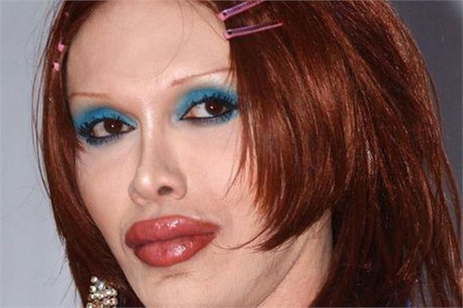 pete burns died in age 57