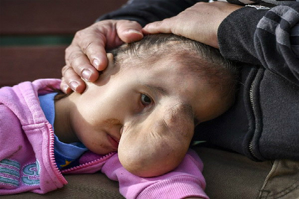 girl rare facial deformity now normal after life changing surgery