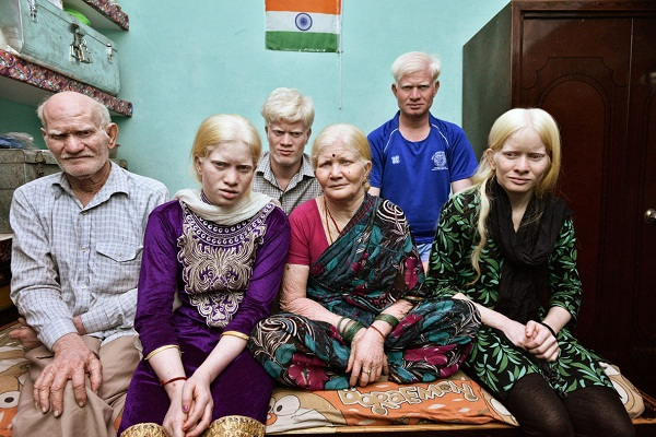 a delhi family feels singled out for their skin