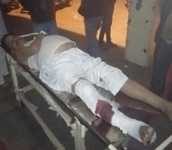 bjp leader  s brother beaten first  then save the sp leader  s broken leg